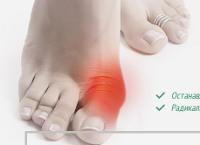 Лечение Косточки на Ноге - Новый Уренгой